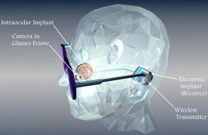 Bioničko oko vraća vid